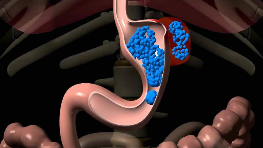 tüp mide ameliyatında kaçak tedavisi