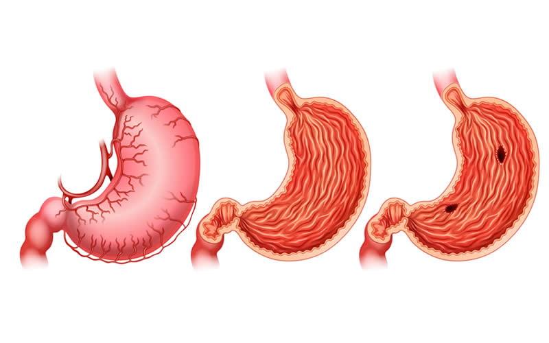 mide ülseri nedenleri