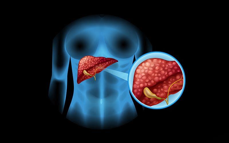 Karaciğer kanseri nedenleri