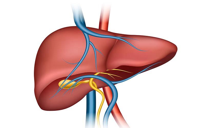 Karaciğer kanseri